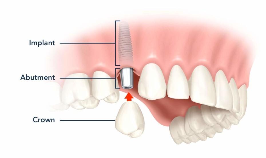 inplant
